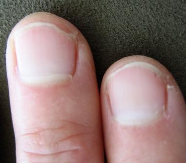 Zinc Deficiency And Fingernails 28
